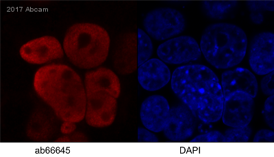Immunocytochemistry/ Immunofluorescence - Anti-HIV1 integrase antibody [IN-2] (ab66645)