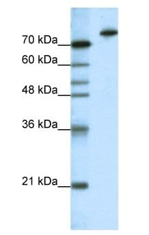 Western blot - Anti-KLHL3 antibody (ab66655)