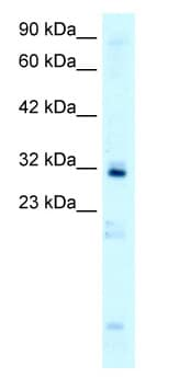 Western blot - Anti-HOXB9 antibody (ab66765)