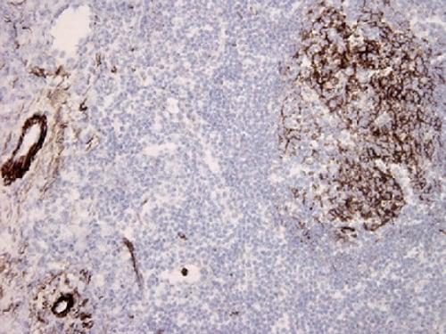 Immunohistochemistry (Frozen sections) - Anti-C5b-9 antibody [aE11] (ab66768)