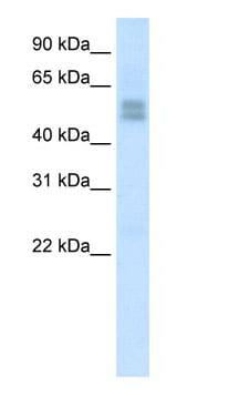 Western blot - Anti-LMX1b antibody (ab66941)