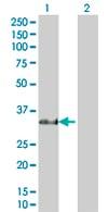 Western blot - Anti-RBPMS antibody (ab67078)