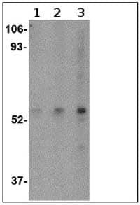 Western blot - Anti-SP110 antibody (ab67220)