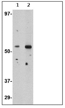 Western blot - Plxdc2 antibody (ab67225)