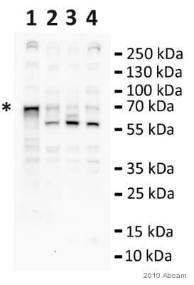 Western blot - Anti-CDKAL1 antibody (ab68045)