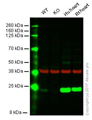 Western blot - Anti-SOD2/MnSOD antibody [EPR2560Y] (ab68155)