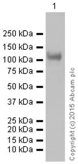 Western blot - Anti-Sarcomeric Alpha Actinin antibody [EP2529Y] (ab68167)