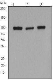 Western blot - alpha Actinin antibody [EP2527Y] (ab68194)