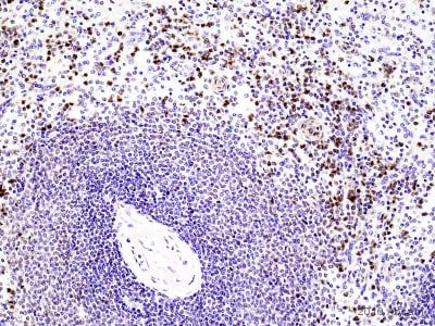 Immunohistochemistry (Formalin/PFA-fixed paraffin-embedded sections) - Anti-Neutrophil Elastase antibody (ab68672)