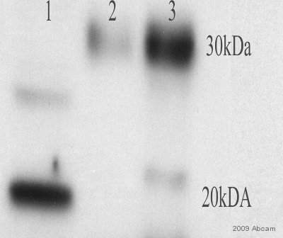 Western blot - Anti-Ferritin Light Chain antibody (ab69090)
