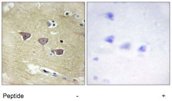 Immunohistochemistry (Formalin/PFA-fixed paraffin-embedded sections) - Anti-CAMKV antibody (ab69564)