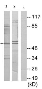 Western blot - Anti-PPHLN1 antibody (ab69569)
