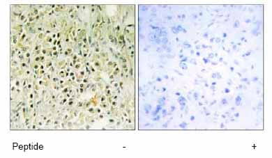 Immunohistochemistry (Formalin/PFA-fixed paraffin-embedded sections) - Anti-Galectin 8 antibody (ab69631)
