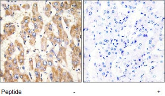Immunohistochemistry (Formalin/PFA-fixed paraffin-embedded sections) - Anti-Bax antibody (ab69643)