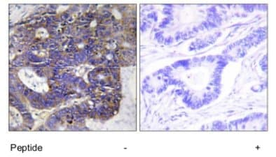 Immunohistochemistry (Formalin/PFA-fixed paraffin-embedded sections) - Anti-CO4A2 antibody (ab69782)