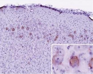 Immunohistochemistry (Formalin/PFA-fixed paraffin-embedded sections) - Anti-Ubiquitin antibody [Ubi-1] (ab7254)