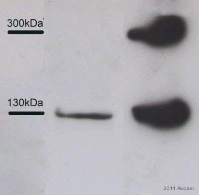 Western blot - Native Human Collagen III protein (ab7535)