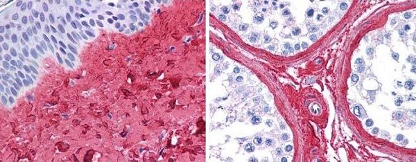 Immunohistochemistry (Formalin/PFA-fixed paraffin-embedded sections) - Anti-Collagen III antibody (ab7778)