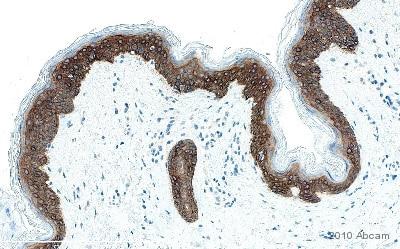 Immunohistochemistry (Formalin/PFA-fixed paraffin-embedded sections) - Anti-Cytokeratin 14 antibody [LL002] (ab7800)