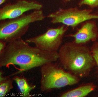 Immunocytochemistry/ Immunofluorescence - Anti-IKKi/IKKe antibody (ab7891)