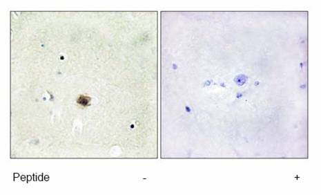 Immunohistochemistry (Formalin/PFA-fixed paraffin-embedded sections) - Anti-CSRP1 antibody (ab70010)