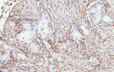 Immunohistochemistry (Formalin/PFA-fixed paraffin-embedded sections) - Anti-MRC2 antibody (ab70132)