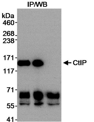 Immunoprecipitation - Anti-CtIP antibody (ab70162)