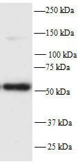Western blot - Anti-PFKFB2 antibody (ab70175)