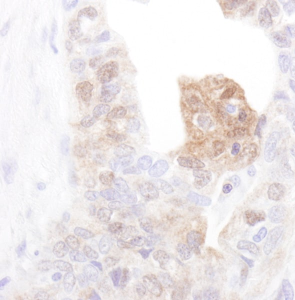 Immunohistochemistry (Formalin/PFA-fixed paraffin-embedded sections) - Anti-CAMKIV antibody (ab70229)
