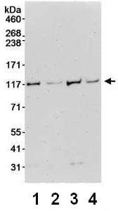 Western blot - Anti-DHX36 antibody (ab70269)