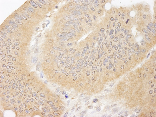 Immunohistochemistry (Formalin/PFA-fixed paraffin-embedded sections) - Anti-CC2D1A antibody (ab70375)