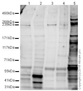 Western blot - Anti-CHD4 antibody [3F2/4] - ChIP Grade (ab70469)
