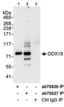Immunoprecipitation - Anti-DDX18 antibody (ab70527)