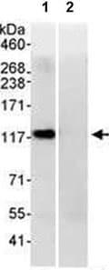 Immunoprecipitation - Anti-PP4R1 antibody (ab70624)