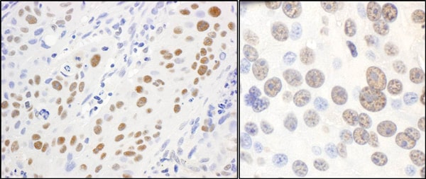 Immunohistochemistry (Formalin/PFA-fixed paraffin-embedded sections) - Anti-PAF1 antibody (ab70638)