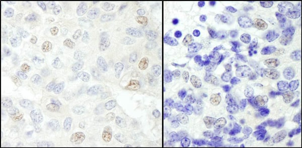 Immunohistochemistry (Formalin/PFA-fixed paraffin-embedded sections) - Anti-NCOA62 antibody (ab70828)