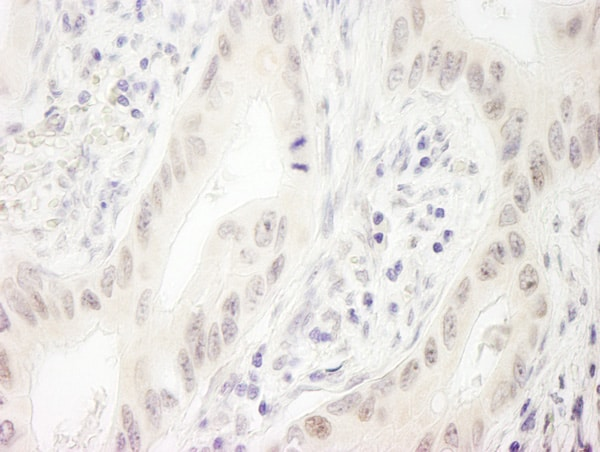 Immunohistochemistry (Formalin/PFA-fixed paraffin-embedded sections) - Anti-DHX33 antibody (ab70863)