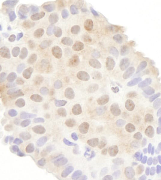 Immunohistochemistry (Formalin/PFA-fixed paraffin-embedded sections) - Anti-Gemin 3 antibody (ab70896)