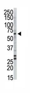 Western blot - Anti-FACL4 antibody - Aminoterminal end (ab70937)