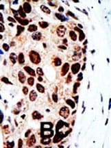 Immunohistochemistry (Formalin/PFA-fixed paraffin-embedded sections) - Anti-HDAC9 antibody (ab70954)
