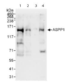 Western blot - Anti-ASPP1 antibody (ab71164)