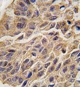 Immunohistochemistry (Formalin/PFA-fixed paraffin-embedded sections) - Anti-Indoleamine 2, 3-dioxygenase antibody - Carboxyterminal end (ab71276)