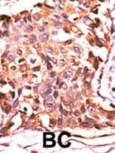 Immunohistochemistry (Formalin/PFA-fixed paraffin-embedded sections) - Anti-PPP4C antibody - N-terminal (ab71324)