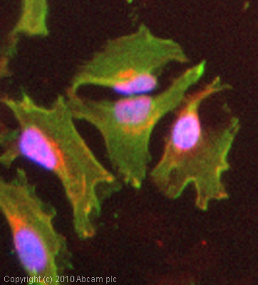 Immunocytochemistry/ Immunofluorescence - Talin 1 antibody (ab71333)