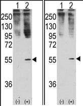 Western blot - Anti-BMP11 antibody (ab71347)