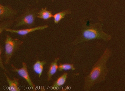 Immunocytochemistry/ Immunofluorescence - Anti-SPHK1 antibody (ab71700)