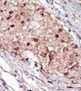 Immunohistochemistry (Formalin/PFA-fixed paraffin-embedded sections) - SPHK1 antibody (ab71700)
