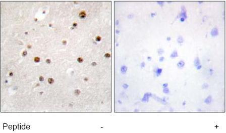 Immunohistochemistry (Formalin/PFA-fixed paraffin-embedded sections) - Anti-Translin antibody (ab71775)