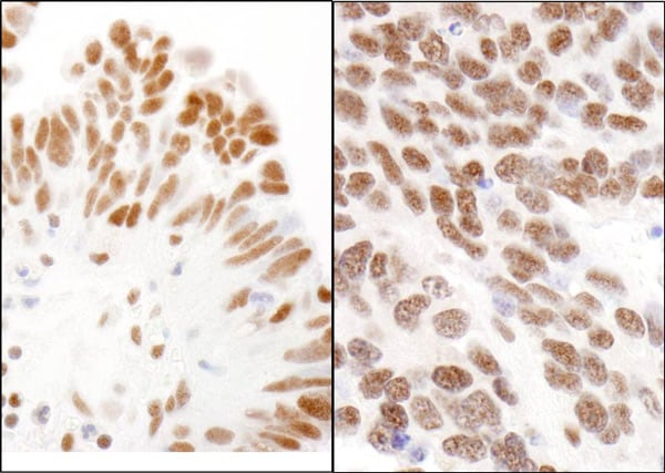 Immunohistochemistry (Formalin/PFA-fixed paraffin-embedded sections) - Anti-HP1 gamma antibody (ab72043)