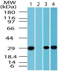 Western blot - Anti-FAIM2 antibody (ab72113)